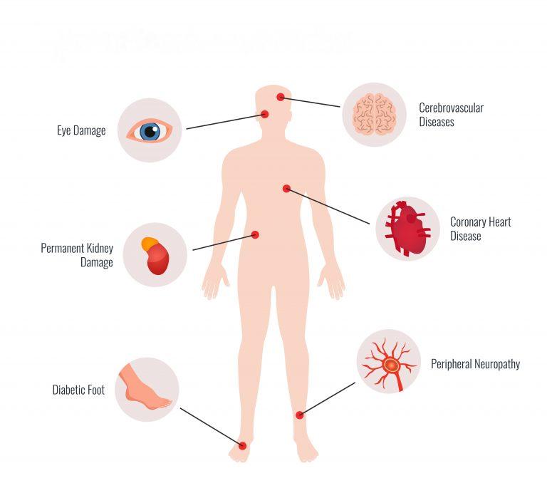 diabetes complications - figure